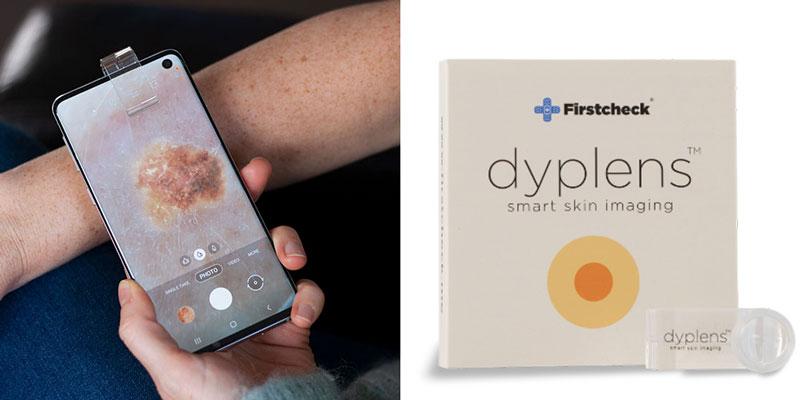 Dyplens - Smart Skin Imaging at Tamar Skin Clinic